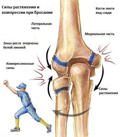 artrózis a könyökkezelésben)