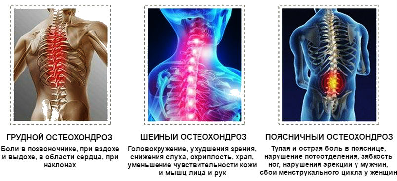 medicament pentru osteocondroza combilipen)