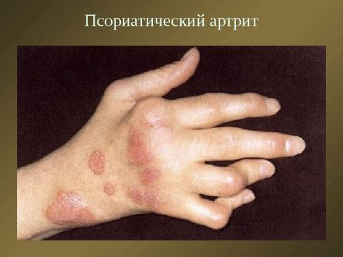 hogyan lehet megállítani a kézízületek ízületi gyulladását)