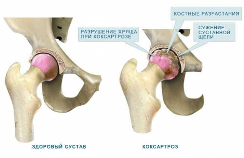 ízületi arthro térdfájdalom hypotermia után