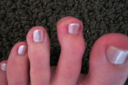 a lábujjak kis ízületeinek gyulladása)