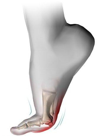 Dureri ale gleznei şi piciorului Cu deteriorarea articulației gleznei este necesară