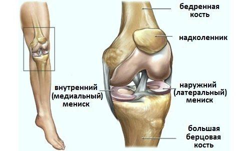 Condropatia genunchiului - Kinetic, Deteriorarea meniscului genunchiului cu grade