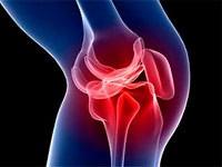 a térd meniszci fáj, hogy mit kell tenni ízületi terpentin gél