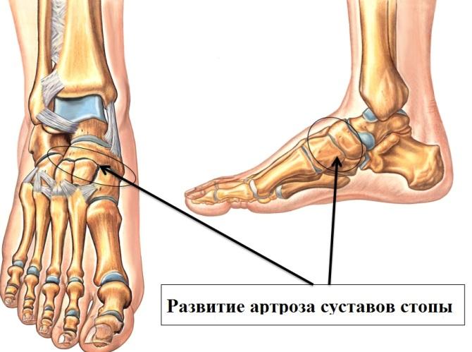 a lábujjak kis ízületeinek gyulladása