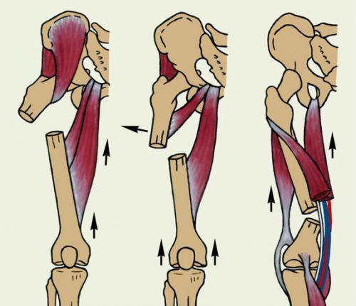 kenőcs a csípőízület coxarthrosisának kezelésére ahol jobb a hát és az ízületek kezelése