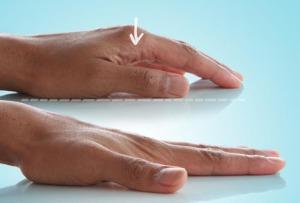 a kéz ízületeinek deformáló artrózisa)