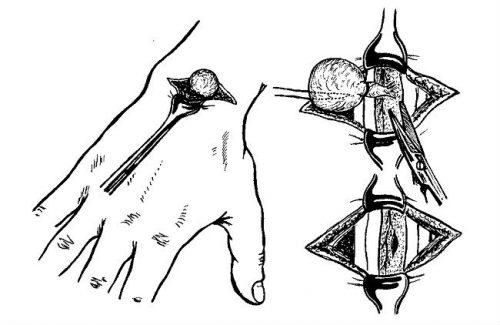 kézízületek kenőcskezelés