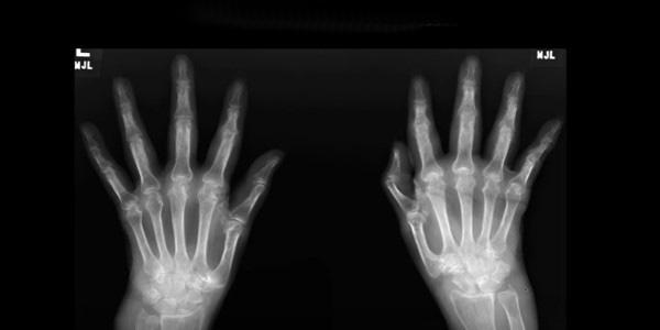rheumatoid arthritis ujjdeformáció