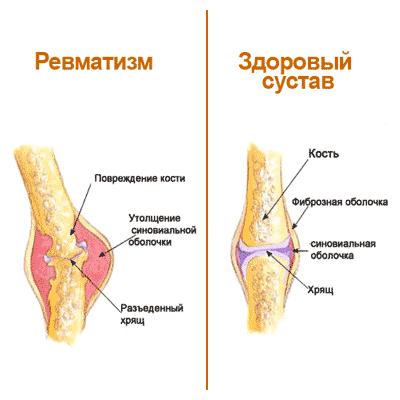 tratamentul articulațiilor rudolph brois