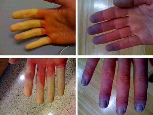 inflamație purulentă a articulației degetului mare)