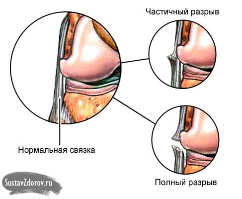 térdfájdalom kezelése artrózissal ízületi krémek kezelése