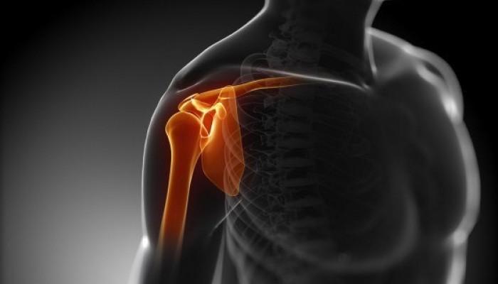 Fájdalmas fájdalom a vállízületben, mit tegyen. Fájdalom a vállízületben: okai és kezelése