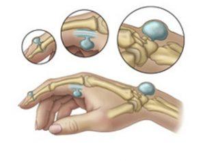 Inflamația medicamentoasă a articulației degetului mare - Artrita degetului mare - thelightdesign.ro