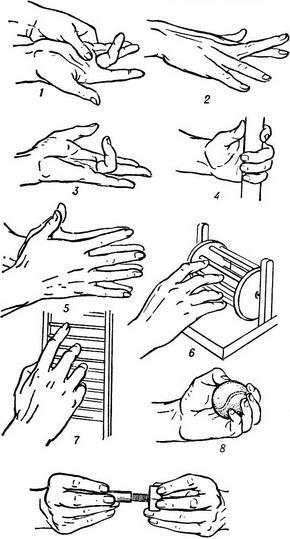 a kéz kis ízületeinek artrózisos kezelése ízületi fájdalom tonsillitis
