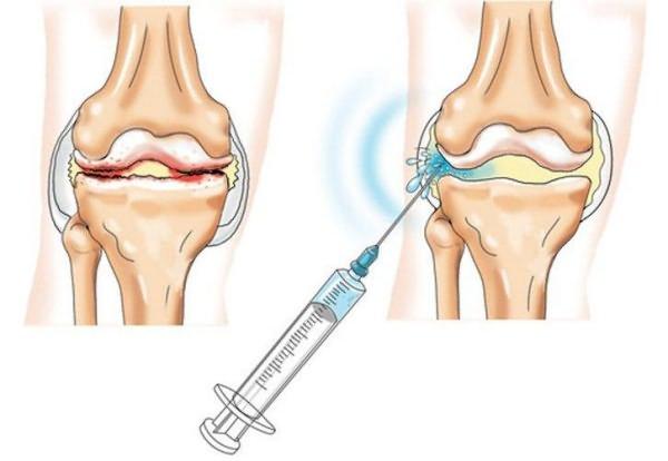 a térd szinovitisz kezelési rendje artrózis súlyosbodási tünetek kezelése