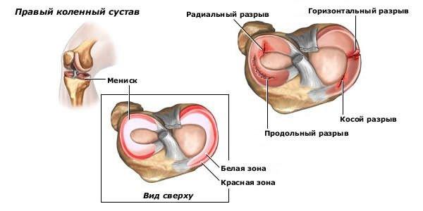 vesszők a térd artrózisához