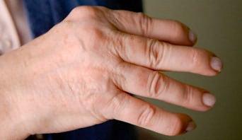 durere batmanghelija în spate și articulații dureri ale articulațiilor piciorului
