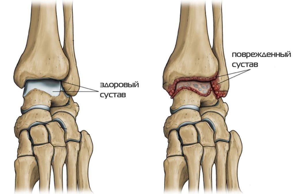 gelul articular durează cauzele durerii articulare la bărbați