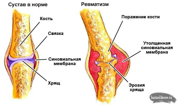 ízületek fájnak szifilissel közös kezelés, ahol