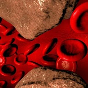 Кальциноз сосудов: суть, виды, причины, симптомы
