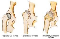 endoproteza articulației șoldului